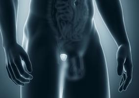 menu-prostata